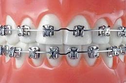 怎样牙齿修复哪家合适