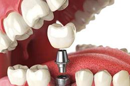 如何专业儿牙专科咨询