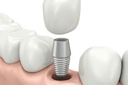 如何牙齿修复怎么样