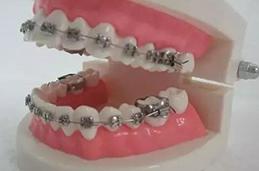 正规牙齿美白新报价