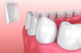 如何牙齿正畸新报价